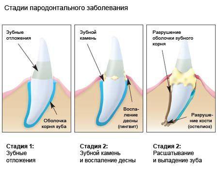 зубной камень у собак стадии